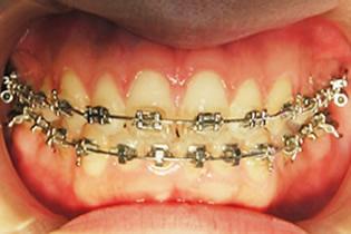 歯の表側にブラケットをつける矯正装置 1