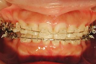 歯の表側にブラケットをつける矯正装置 2