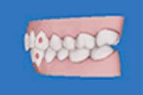3Dの歯列作成・シュミレーションのイメージ